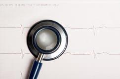 Graphique et stéthoscope d'ECG Photographie stock