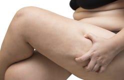 Grasa de la pierna del apretón de la mujer que lleva el sujetador negro de la ropa interior en blanco aislado Foto de archivo libre de regalías