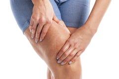 Grasa y celulitis en las piernas foto de archivo
