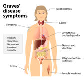 Graves' disease or Basedow disease. Symptoms and signs vector illustration