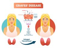 Graves disease vector illustration. Labeled diagnosis symptoms diagram. Reason of autoimmune disorder with anxiety, tremor, fatigue and bulging eyes. Medical stock illustration