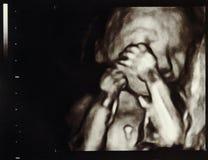 Gravidanza di ultrasuono Fotografie Stock
