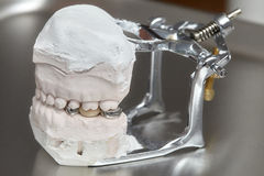 Gray dental prosthesis teeth mold, clay human gums model Stock Photo