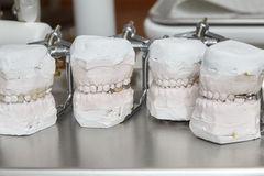 Gray dental prosthesis teeth mold, clay human gums model Royalty Free Stock Photo
