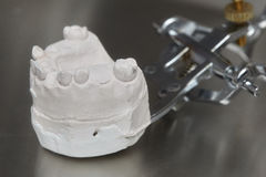 Gray dental prosthesis teeth mold, clay human gums model Royalty Free Stock Photos