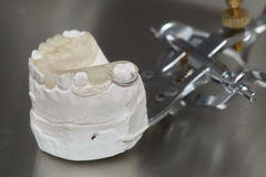 Gray dental prosthesis teeth mold, clay human gums model Stock Images