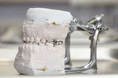 Gray dental prosthesis teeth mold, clay human gums model Royalty Free Stock Image