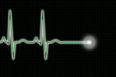 Green and Black ECG Trace. A green and black ECG/EKG heart rhythm trace illustration Royalty Free Stock Photography