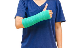 Green cast on hand and arm on white background Royalty Free Stock Images