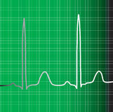 Green Ecg Stock Photography