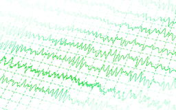 Green graph brain wave EEG isolated Stock Images