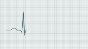 Green Heart Beat Cardiogram Background. stock video footage