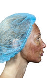 Grenze zwischen der aufbereiteten und gesunden Haut auf einem Stutzen cosmetology Haut im Verlauf der Ablehnung nach einem tiefen lizenzfreie stockfotografie