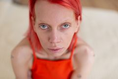 Skinny grey-eyed woman with red hair suffering from anorexia stock images