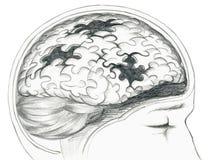 Grey malato del cervello umano Fotografia Stock Libera da Diritti