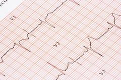 Gráfico de EKG Imagen de archivo libre de regalías