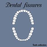 Grietas dentales Foto de archivo libre de regalías