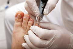 Grind toenail Stock Photo