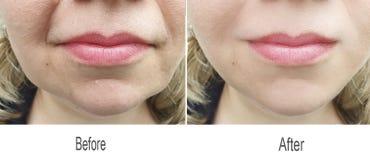 Grinza, fronte, pelle, guancia, fronte, labbra immagine stock