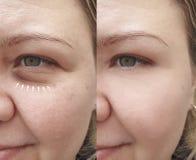 Grinze caucasiche del fronte della ragazza dopo rimozione fotografia stock libera da diritti