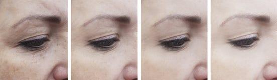 Grinze della donna prima di rimozione di effetto dopo la correzione di sollevamento di correzione matura di trattamento immagini stock