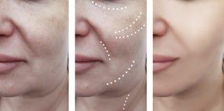 Grinze facciali femminili prima e dopo le procedure del collage fotografie stock