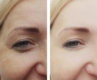 Grinze femminili degli occhi prima e dopo le procedure, gonfiantesi rimozione immagini stock libere da diritti