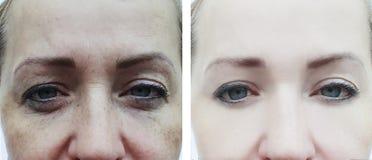 Grinze femminili degli occhi prima e dopo le procedure, rigonfiamento immagine stock libera da diritti
