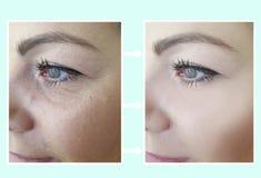 Grinze femminili del fronte prima e dopo le procedure, effetto fotografie stock libere da diritti