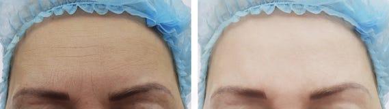 Grinze femminili della fronte prima dopo le procedure fotografia stock