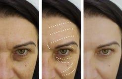 Grinze femminili prima e dopo i risultati fotografia stock libera da diritti