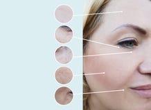 Grinze femminili prima e dopo il collage di procedure di terapia dell'estetista di rigenerazione fotografie stock libere da diritti