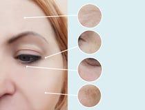 Grinze femminili prima e dopo le procedure dell'estetista fotografia stock