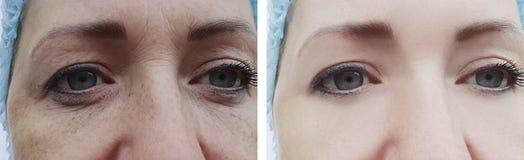 Grinze femminili prima e dopo le procedure, gonfiantesi la pigmentazione di rimozione immagini stock libere da diritti