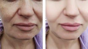 Grinze femminili prima e dopo le procedure, gonfiantesi rimozione fotografia stock libera da diritti
