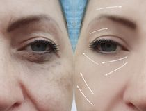 Grinze prima e dopo le procedure, freccia del fronte della donna fotografia stock libera da diritti