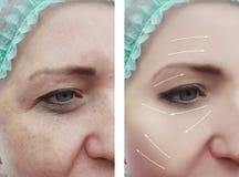 Grinze prima e dopo le procedure pazienti di differenza di terapia di ringiovanimento, freccia del fronte della donna immagini stock libere da diritti