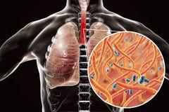Gritar - bactérias da tosse em vias aéreas humanas ilustração stock
