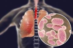 Gritar - bactérias da tosse em vias aéreas humanas ilustração royalty free
