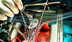 Großaufnahme auf mitral Ring während des inplantation Lizenzfreies Stockfoto