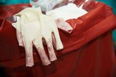 Großaufnahme von den benutzten chirurgischen Handschuhen befleckt mit Blut im Operationsraum stockbild