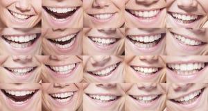 Großes schönes Lächeln und weiße Zähne Stockbild