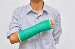 Groen gegoten op hand en wapen  Stock Foto