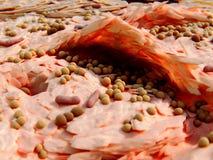 Gronkowiec - aureus bakterii aggravete neurodermitis symptons ilustracji