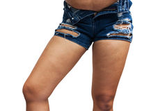 Grosses cuisses, cellulites Photo stock
