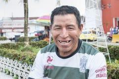 Grote glimlach met geavanceerd tandbederf royalty-vrije stock fotografie