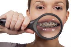 Grote tanden Royalty-vrije Stock Foto