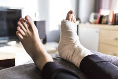 Grounded at home with a leg in a cast. Man grounded at home with a leg in a cast royalty free stock photos