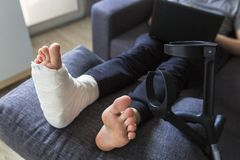 Grounded at home with a leg in a cast. Man grounded at home with a leg in a cast stock images