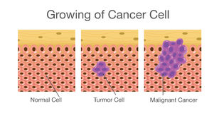 Growing of cancer cell. Royalty Free Stock Photos